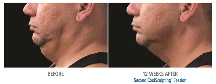 Michigan-CoolSculpting-effective-for-fat-removal-from-submental-double-chin