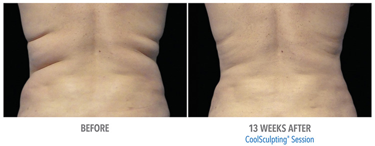 michigan-CoolSculpting-services-effective-for-fat-removal-from-love-handles