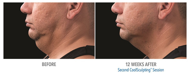 michigan-coolsculpting-certified-practice-reduce-fat-on-the-chin