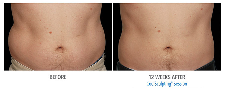 reduce-fat-safely-with-coolsculpting-services