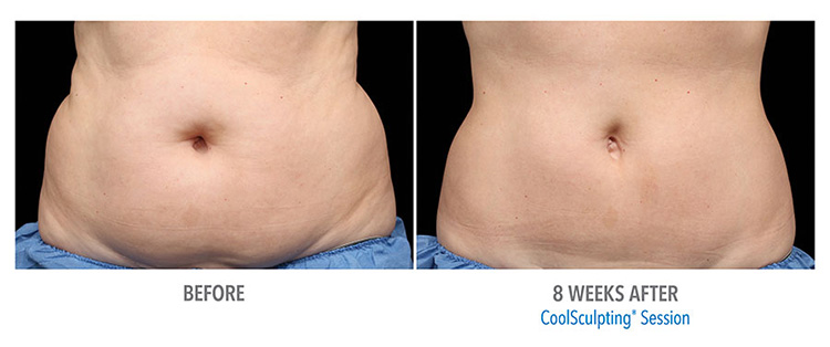 CoolSculpting-Abdomen-Reduction-After-Treatment