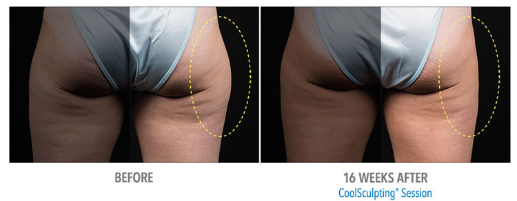 CoolSculpting-effective-for-fat-removal-from-inner-or-outer-thighs-offered-at-our-michigan-location