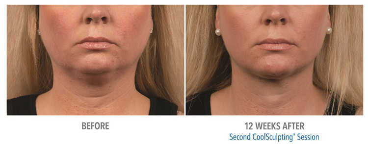 CoolSculpting-effective-for-fat-removal-from-submental-double-chin-offered-at-our-michigan-location