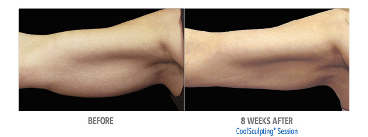 CoolSculpting-fat-removal-from-arms-helping-patients-at-our-michigan-location
