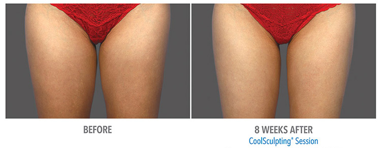 CoolSculpting-for-fat-removal-from-inner-or-outer-thighs