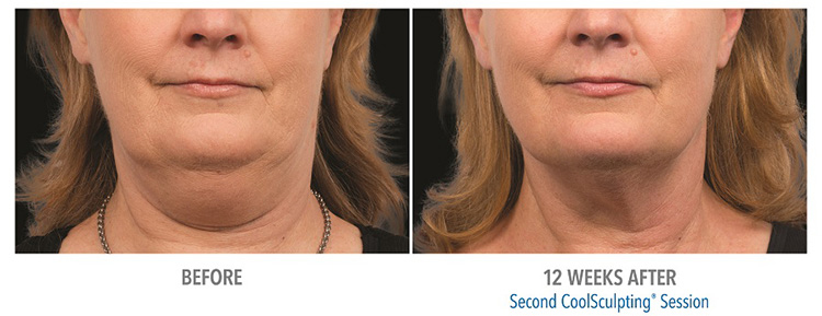 Remove-fat-removal-from-double-chin-coolsculpting