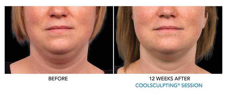 Remove-fat-removal-services-for-double-chin-coolsculpting