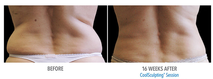CoolSculpting-effective-for-fat-removal-from-love-handles