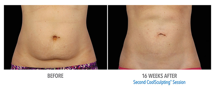 CoolSculpting-for-the-Abdomen-area-fat reduction-services-in-st-clair-shores