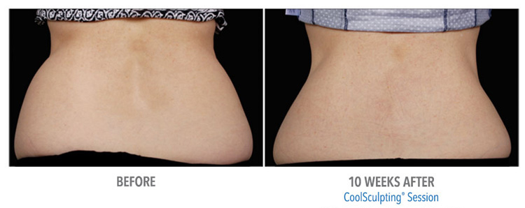 St-Clair-Shores-MI-CoolSculpting-eliminates-fat-removal-from-love-handles