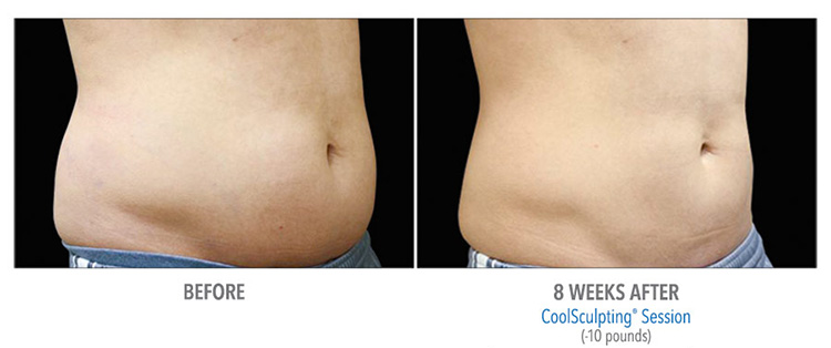 St-Clair-Shores-MI-Coolsculpting-to-eliminate-fat-safely