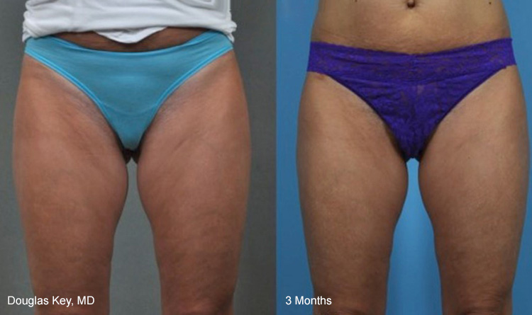 Thermi Smooth Body Reduction of Cellulite Services in Michigan