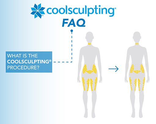CoolSculpting Services in Michigan Helping Clients reduce fat safely