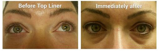 lash-liner-permanent-makeup-image