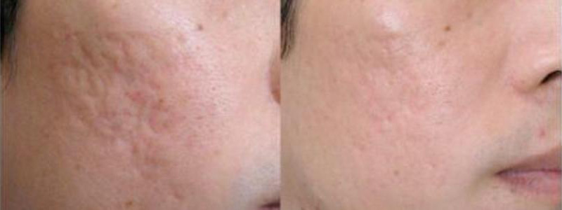MicroNeedling Services in St Clair Shores Michigan