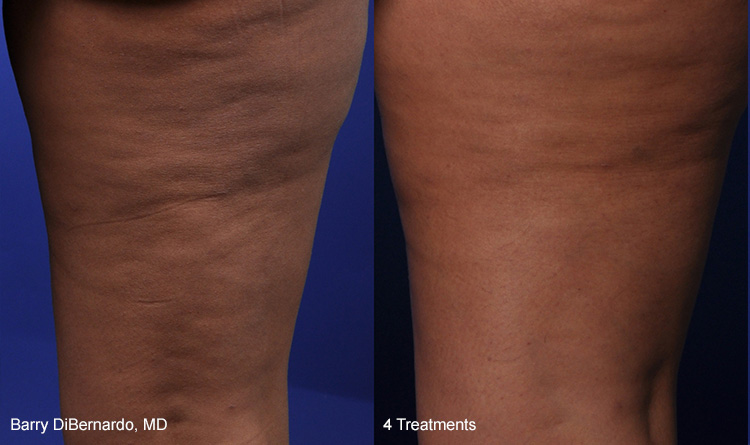 ThermiSmooth Cellulite Reduction Michigan