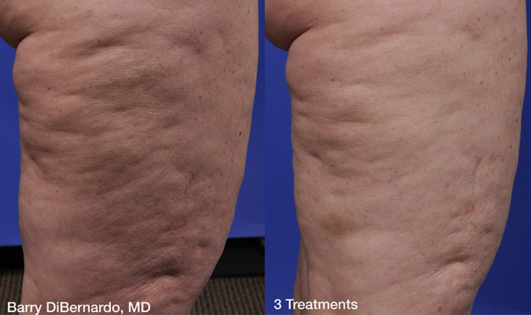 Thermi Smooth Body Reduction of Cellulite Services in Michigan H