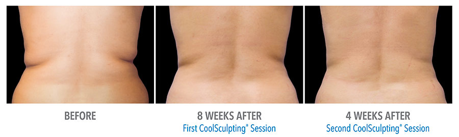Harrison Twp MI CoolSculpting Services