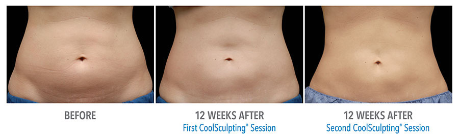 Harrison Township Michigan CoolSculpting Services