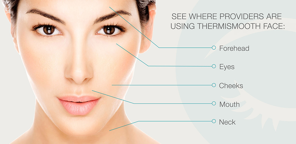 ThermiSmooth and Skin Tightening Macomb Township MI