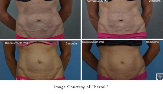 thermismooth-body-sculpting-spa-skin-tightening-abs5