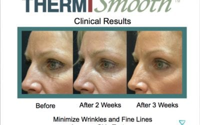 How Long Until I See Results With ThermiSmooth?