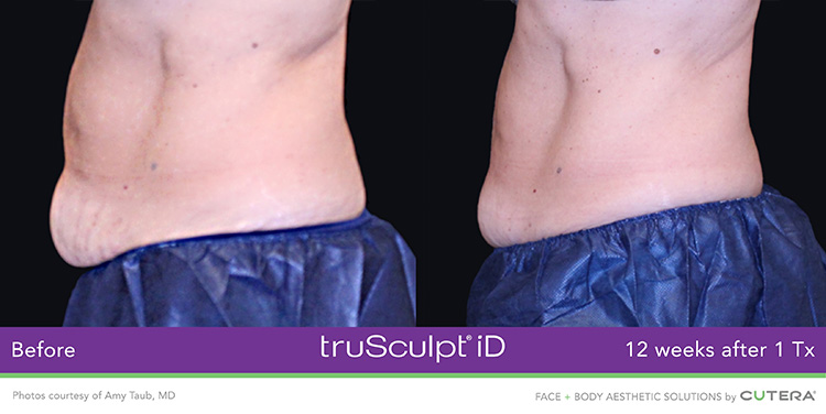 TruSculpt ID Before and After Pictures