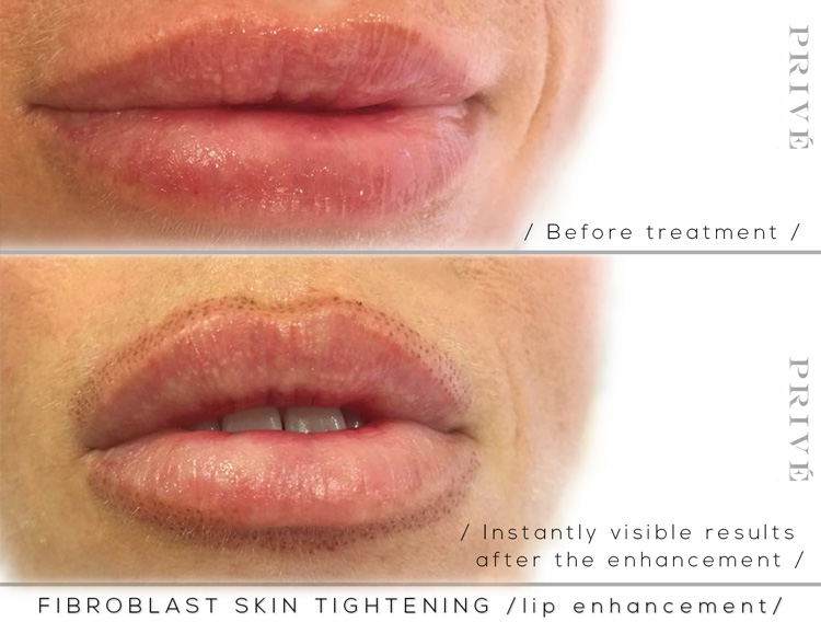 Before-and-After-Images-of-Fibroblast-Lip-Enhancement-in-Michigan