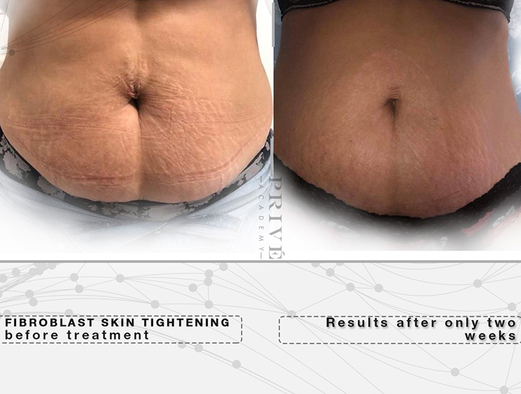Fibroblast-Belly-Fat-Skin-Tightening-Michigan-Services