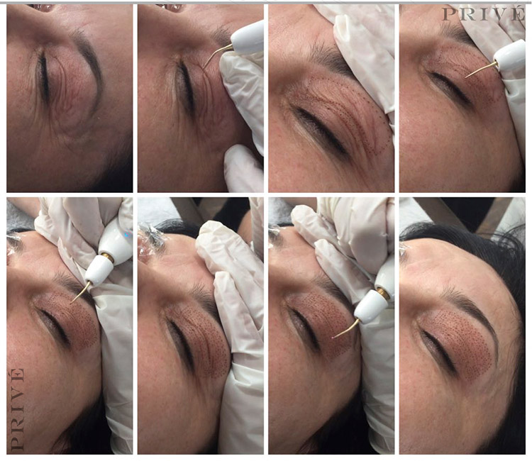 Fibroblast-Treatment-Performed-in-Our-Michigan-Location