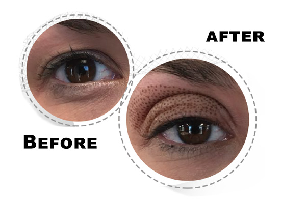 Fibroblast-treatment-for-Upper-Eyelid-LIfting