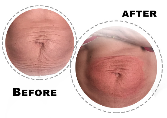 Fibroblast-treatment-for-belly-saggy-skin-reduction